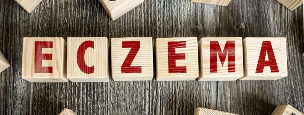 Екзема: причини, видове, симптоми и методи на лечение