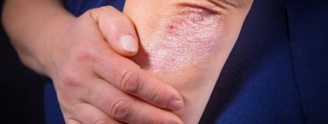 Псориазис и болки в ставите