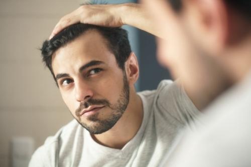 Какво причинява косопад, алопеция и оплешивяване и помага ли миноксидил?