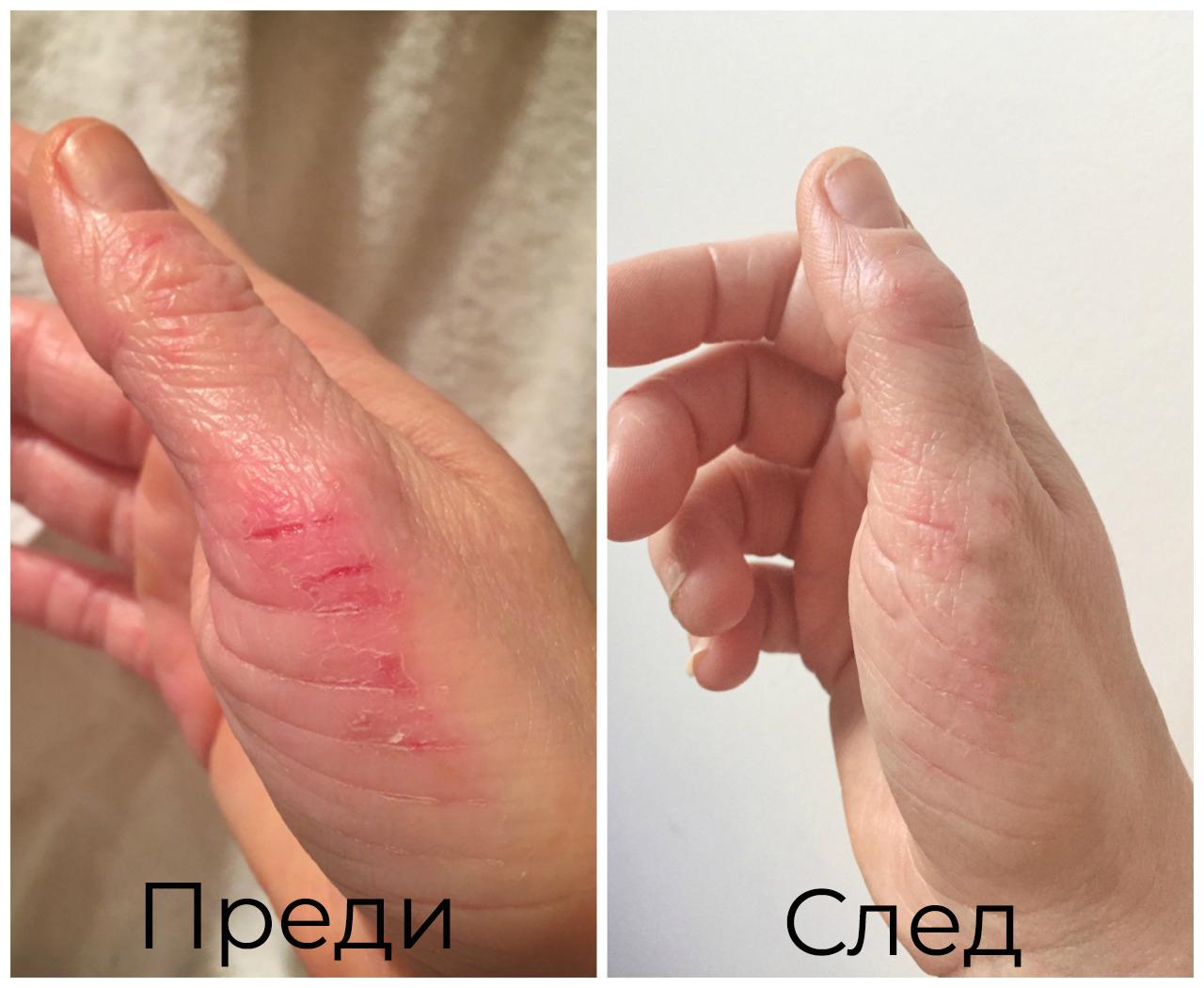 Bioskin Дезинфектант за ръце е специално предназначен за суха кожа на ръцете, възстановява, вместо да уврежда кожата, както е при повечето дезинфекциращи продукти.