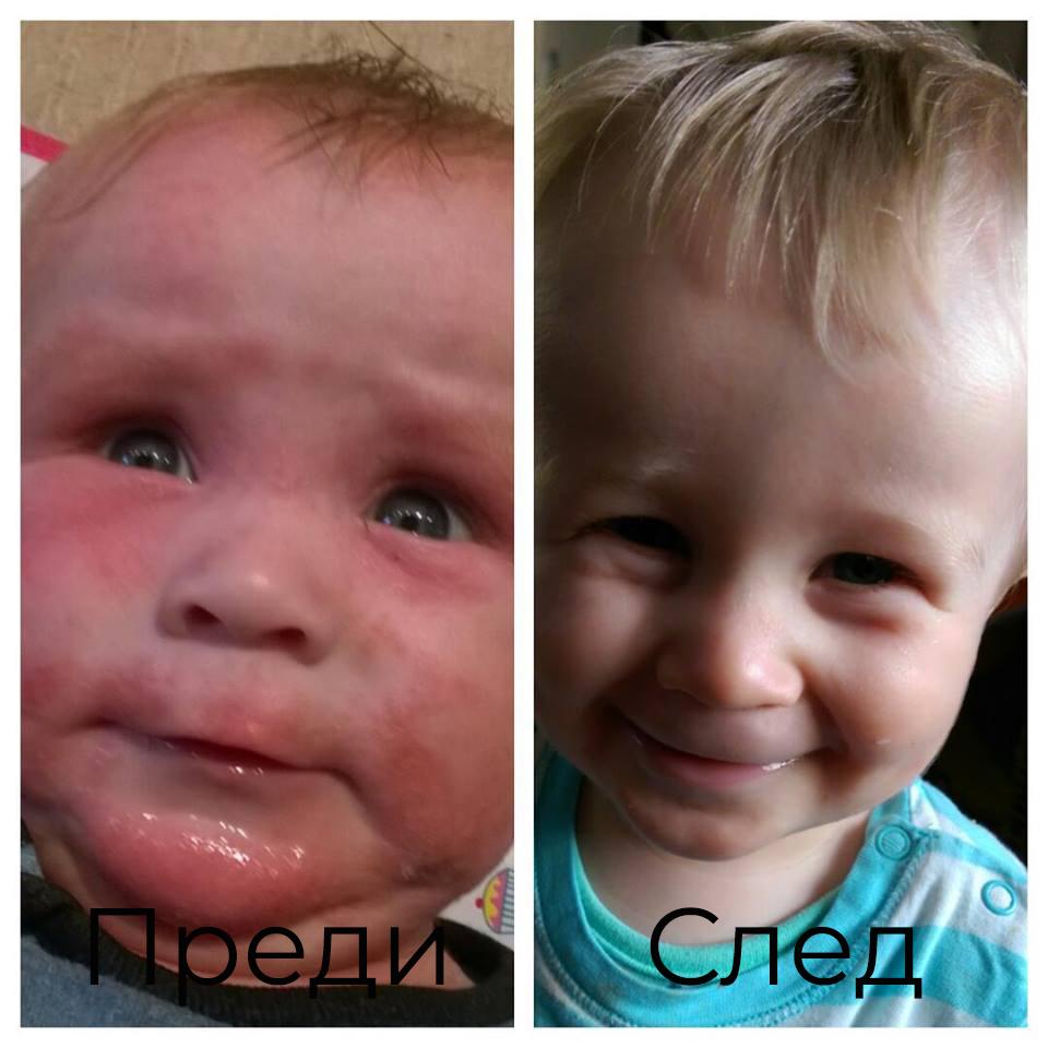Bioskin Junior Хидратиращ спрей за бебета и деца намалява сухотата на кожата, подхранва я вв дълбочина и помага при кожни алергии и дразнения.